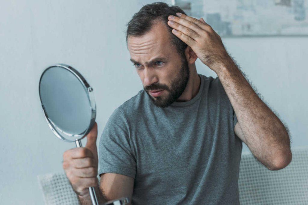 La cirugía capilar, la mejor manera de luchar contra la alopecia